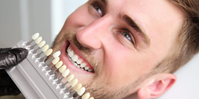 Young man choosing color of teeth at dentist